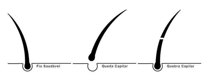 Qual a diferença entre Queda de Cabelo e Quebra de Cabelo?