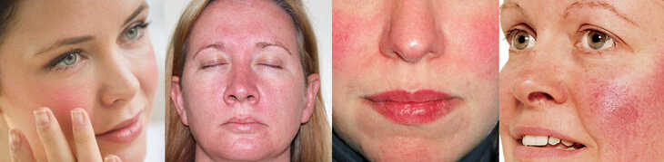 Como cuidar da pele com rosácea?