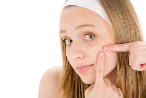 Tratamentos Naturais para Acne