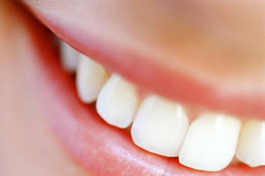 Mantenha seu sorriso bonito e evite doenças!